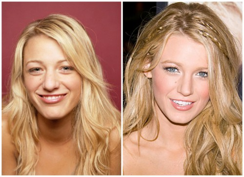 Blake-Lively-Plastic-Surgery-Before-And-After-Nose-Job-Rhinoplasty-Kiev-Ukraine